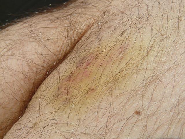 chlupatá kůže